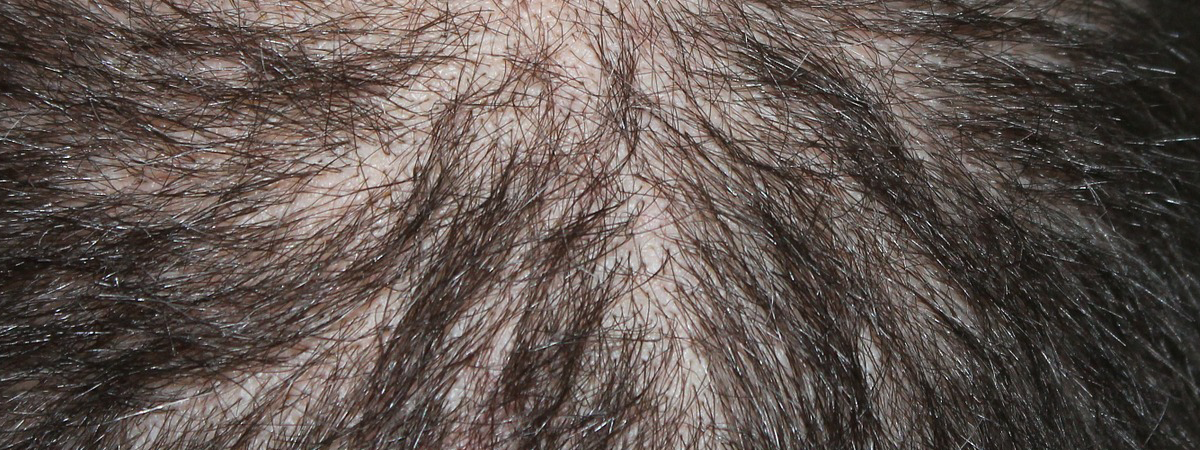 Hair Loss Keto